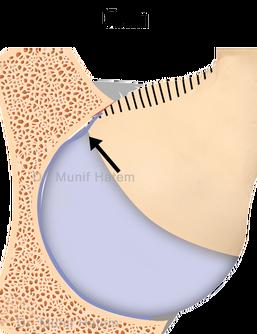 Impacto ou conflito fêmoro-acetabular tipo cam ou came. Lesão do lábio do quadril e cartilagem por impacto em atletas.
